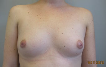 Breast Augmentation before 1060606
