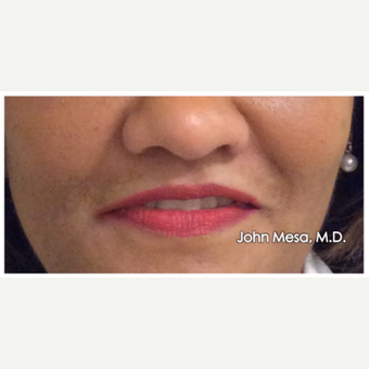 45-54 year old woman treated with Restylane for Lip Augmentation after 3059029