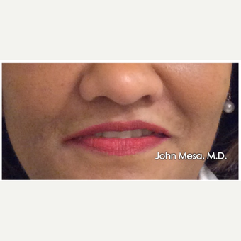 45-54 year old woman treated with Restylane for Lip Augmentation before 3059029