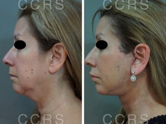 55 year old woman treated with SMAS Facelift after 3031538