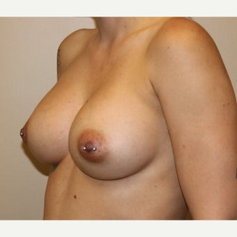 25-34 year old woman treated with Breast Augmentation after 2622734