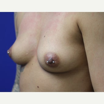 25-34 year old woman treated with Breast Augmentation before 2622734