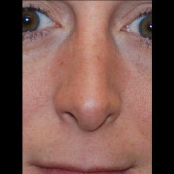 35-44 year old woman treated with Silikon 1000 for non-surgical rhinoplasty. One treatment,