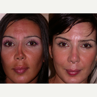 45-54 year old woman treated with Revision Rhinoplasty before 3521516
