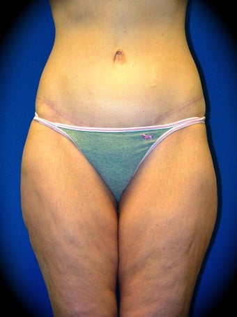 Thighplasty before 986014