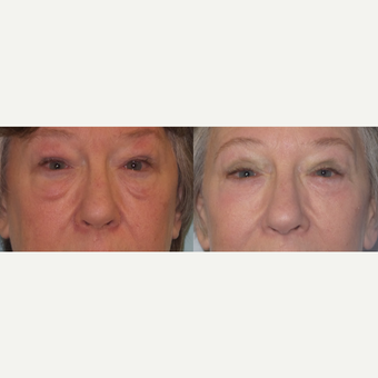 Lower eyelid lift with laser skin resurfacing and fat grafting for festoons before 3730127