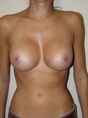 Breast Augmentation after 939684