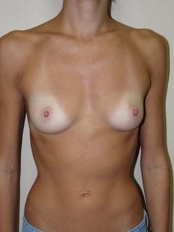 Breast Augmentation before 939684