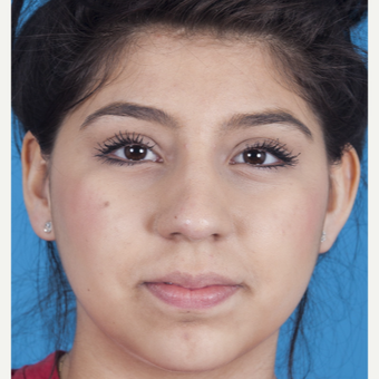 17 or under year old woman treated with Rhinoplasty after 3115257