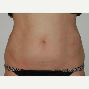 35-44 year old woman treated with CoolSculpting before 1570784