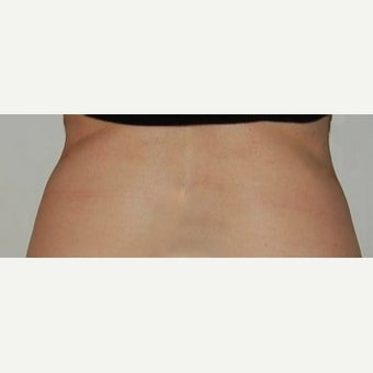 35-44 year old woman treated with CoolSculpting 1570784