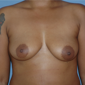 25-34 year old woman treated with Breast Augmentation before 3147247