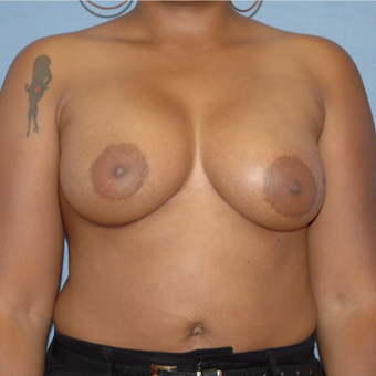 25-34 year old woman treated with Breast Augmentation after 3147247