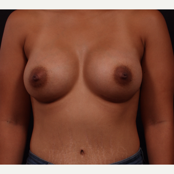 25-34 year old woman treated with Breast Augmentation after 3326205