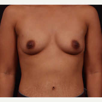 25-34 year old woman treated with Breast Augmentation before 3326205