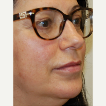 55-64 year old woman treated with Silikon 1000 for Lip Augmentation - Two treatments after 3542356