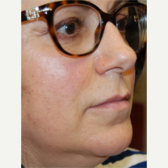 55-64 year old woman treated with Silikon 1000 for Lip Augmentation - Two treatments before 3542356