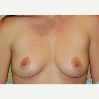 25-34 year old woman treated with Breast Implants before 3236041