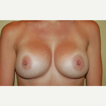 25-34 year old woman treated with Breast Implants after 3236041