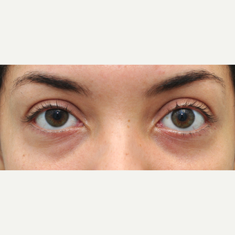 25-34 year old woman treated withRestylane tear trough treatment before 3650273