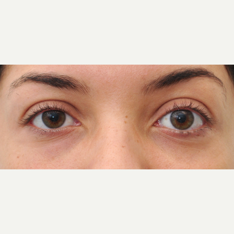 25-34 year old woman treated withRestylane tear trough treatment after 3650273