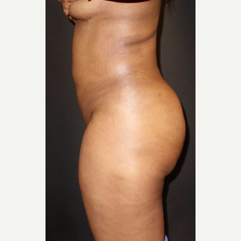 35-44 year old woman treated with Brazilian Butt Lift after 3014068