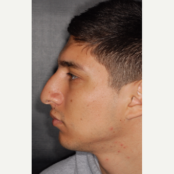 25-34 year old man treated with Septoplasty 3 years post-op before 3814064
