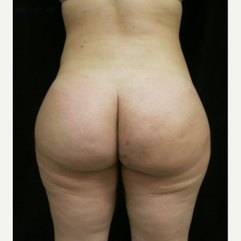 18-24 year old woman treated with Butt Augmentation, with Fat Transfer after 2043164
