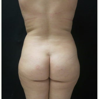 18-24 year old woman treated with Butt Augmentation, with Fat Transfer