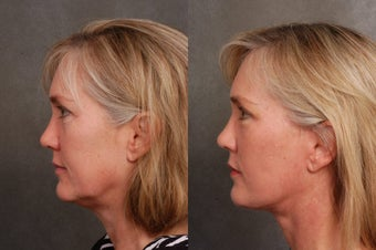50 year old woman treated for early facial aging after 1497687