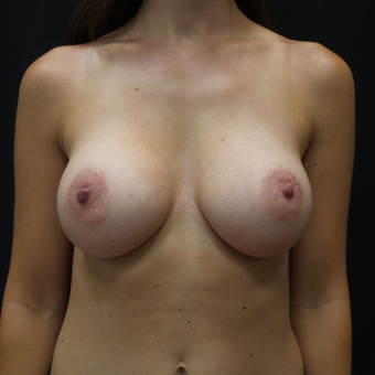 Breast Augmentation after 3012439