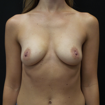 Breast Augmentation before 3012439