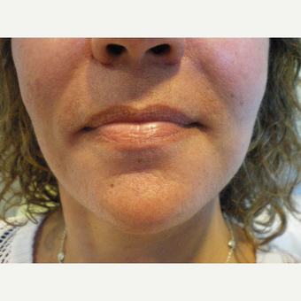 45-54 year old woman treated with Restylane after 3060133