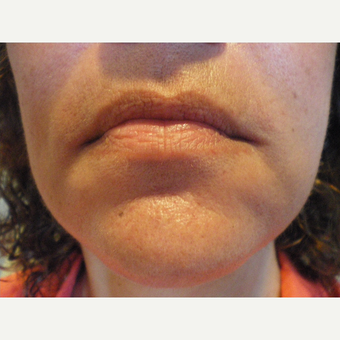 45-54 year old woman treated with Restylane before 3060133