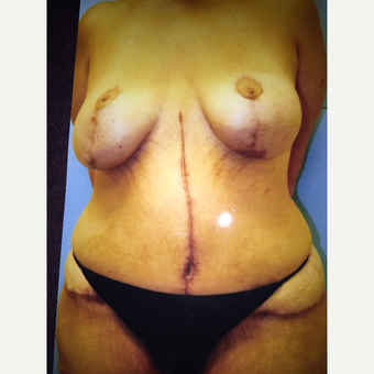 45-54 year old woman treated with Mommy Makeover after 3333480