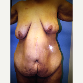 45-54 year old woman treated with Mommy Makeover before 3333480