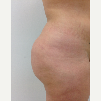 18-24 year old woman treated with Fat Transfer after 3581973