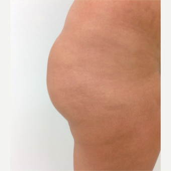 18-24 year old woman treated with Fat Transfer before 3581973