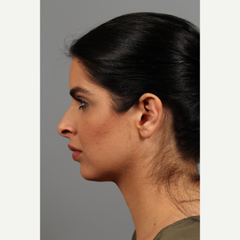 25-34 year old woman treated with Chin Implant before 3286634