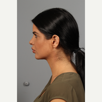 25-34 year old woman treated with Chin Implant after 3286634