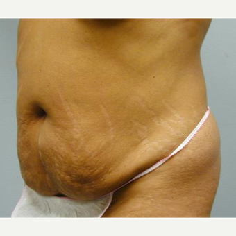 Tummy Tuck before 3241450