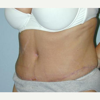Tummy Tuck after 3241450