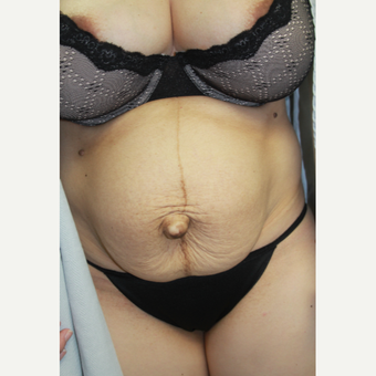 Female with significant abdominal wall protrusion and redundant Abdominal Skin before 3286561