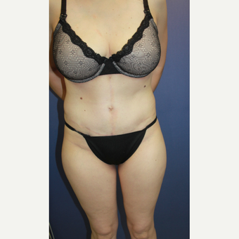 Female with significant abdominal wall protrusion and redundant Abdominal Skin after 3286561