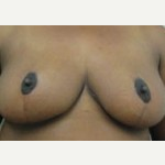 25-34 year old woman treated with Breast Reduction after 3093353