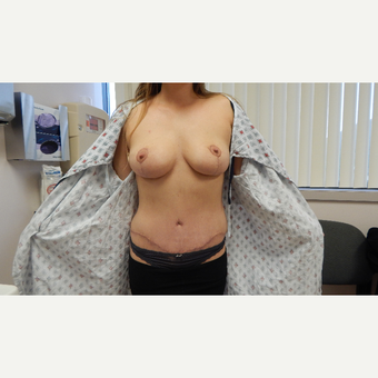 25-34 year old woman treated with Mommy Makeover after 3814010