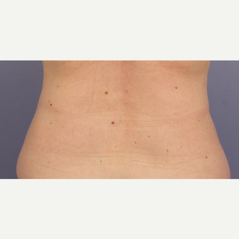 45-54 year old woman treated with CoolSculpting after 3711028