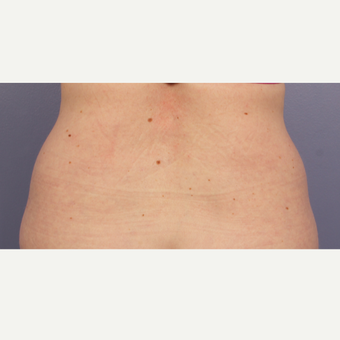 45-54 year old woman treated with CoolSculpting before 3711028