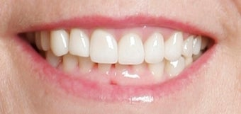 Restoration with Porcelain Veneers after 886650