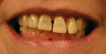 Restoration with Porcelain Veneers before 886650